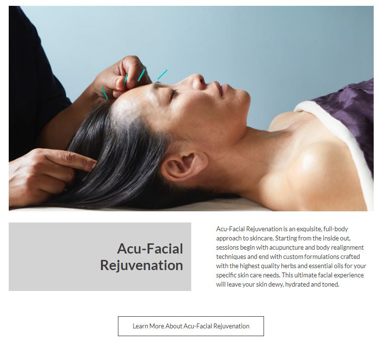 photo of an asian woman with four acupuncture needles being placed by the hands of a practitioner paired with digital copywriting description sample of acu-facial rejuvenation written by carrie anton